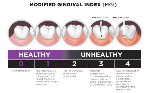 Modified gingival index